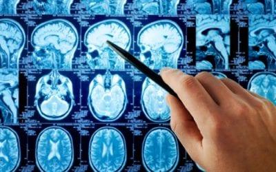 Jak przebiega spastyczność wróżnych jednostkach chorobowych?